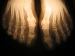 footbones.jpg